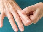 ألم التهاب المفاصل والطقس